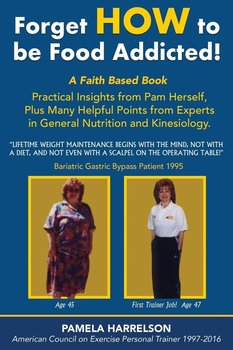 Bariatric Surgery or, the Old Fashioned Way?-Harrelson Pamela