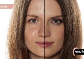 Cera tłusta – jak o nią dbać, jakie kosmetyki wybierać, czego unikać?