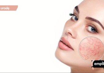 Krem, podkład, makijaż - wszystko o pielęgnacji cery naczynkowej