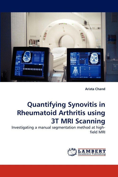 Quantifying Synovitis in Rheumatoid Arthritis using 3T MRI